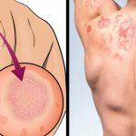"""10 อาการที่จะเกิดขึ้น ถ้าคุณไม่ """"อาบน้ำ"""" สม่ำเสมอ (ไม่ใช่แค่กลิ่นตัวอย่างเดียวด้วยนะ!!)"""