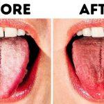 """10 วิธีแก้อาการ """"ลิ้นเป็นฝ้า"""" ด้วยสิ่งของจากธรรมชาติ เพื่อสุขภาพช่องปากที่ดีไร้กังวล"""